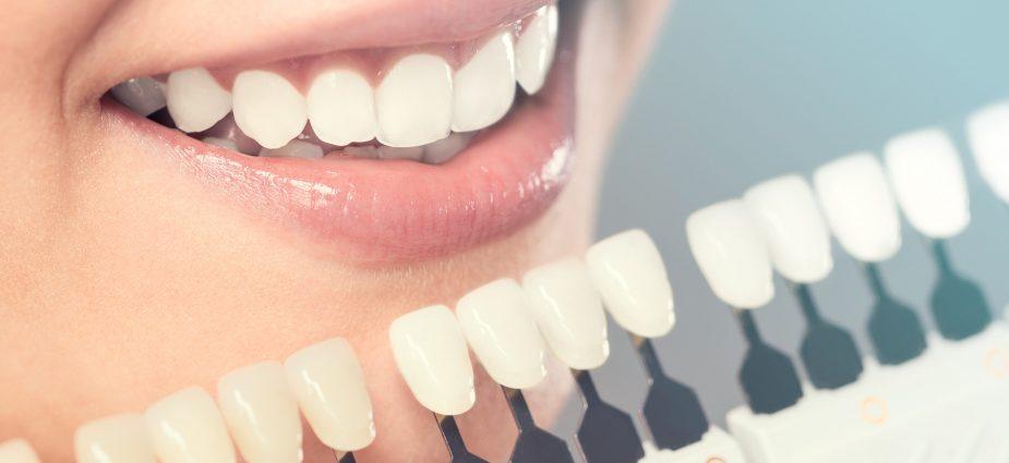 aisthitiki odontiatriki lavtzis